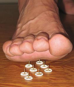糖尿病並發症影響腿和腳的神經