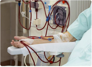 末期腎臟疾病患者須定期透過血液透析去排除身體多餘的液體和毒素