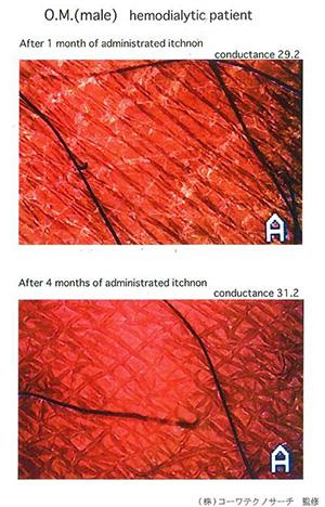 服食高浓度GLA改善皮肤水份和微血管循环